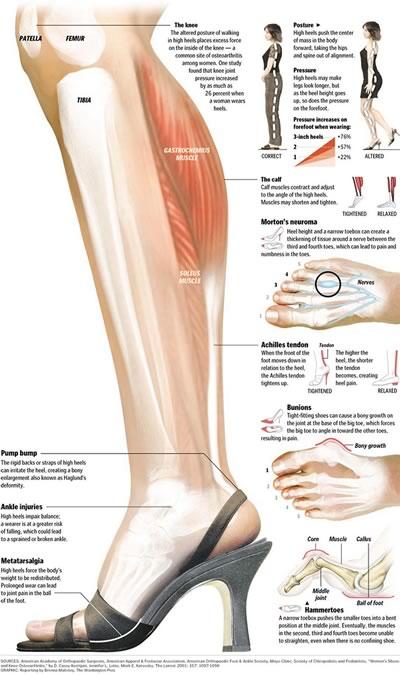 high_heels_diagram.jpg