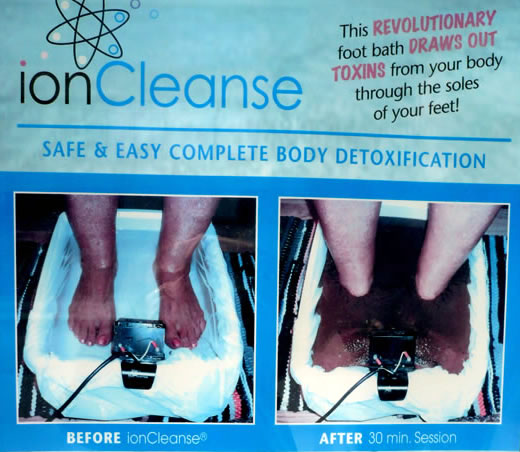 "Section of the IonCleanse poster showing ""before"" and ""after"" photos."