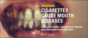 "Canadian cigarette warning label: ""Cigarettes cause mouth diseases\"""
