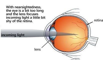 Diagram of the eye and nearsightedness