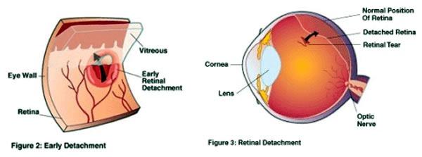 retinal_detachment