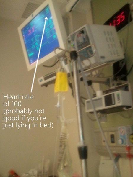 Patient monitors in my ICU room