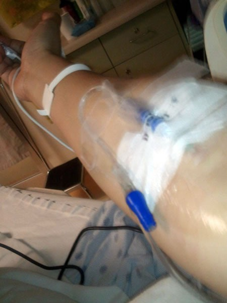 Joey deVilla's arm, with an IV line attached to it