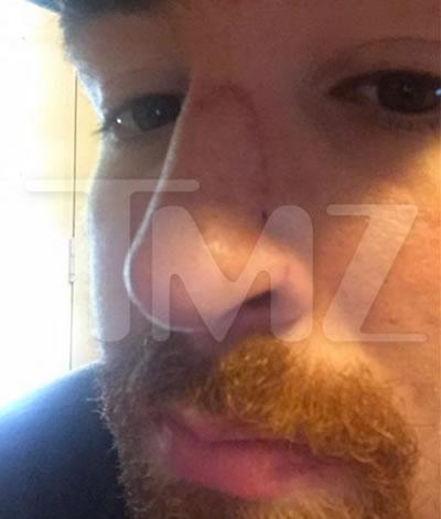 repaired nose